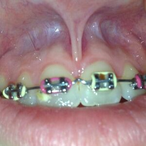 Example: Tethered Oral Tissues